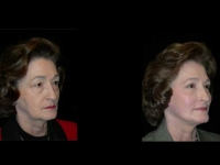 Atlanta Facelift Patient 42 Before & After