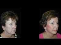 Atlanta Facelift Patient 43 Before & After