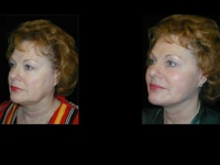 Atlanta Facelift Patient 33 Before & After