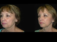 Atlanta Facelift Patient 35 Before & After