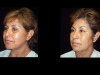 Atlanta Facelift Patient 36 Before & After