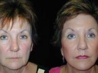Atlanta Facelift Patient 38 Before & After