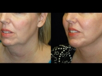 Atlanta Facelift Patient 7 Before & After