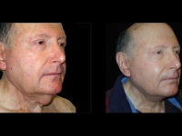 Atlanta Facelift Patient 9 Before & After
