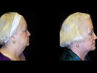 Atlanta Facelift Patient 4 Before & After