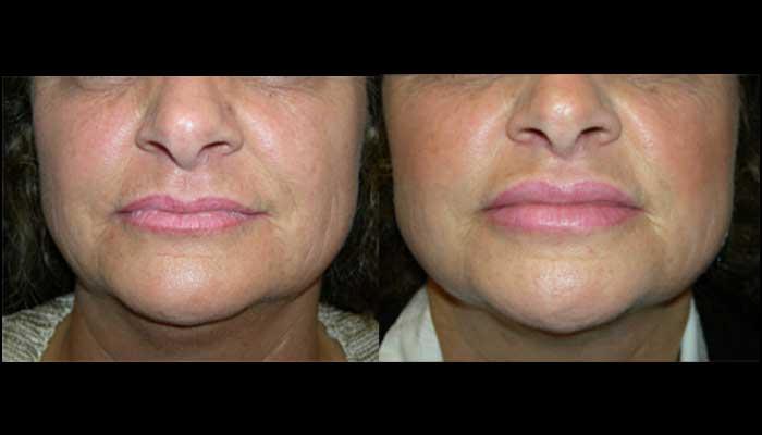 Atlanta Facial Rejuvenation Patient 1 Before & After