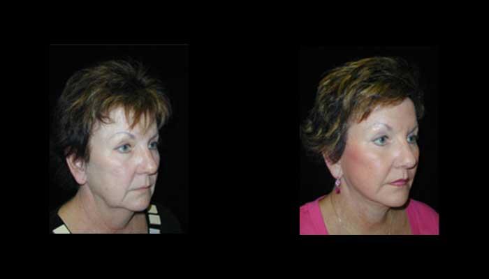 Atlanta Facial Rejuvenation Patient 2 Before & After