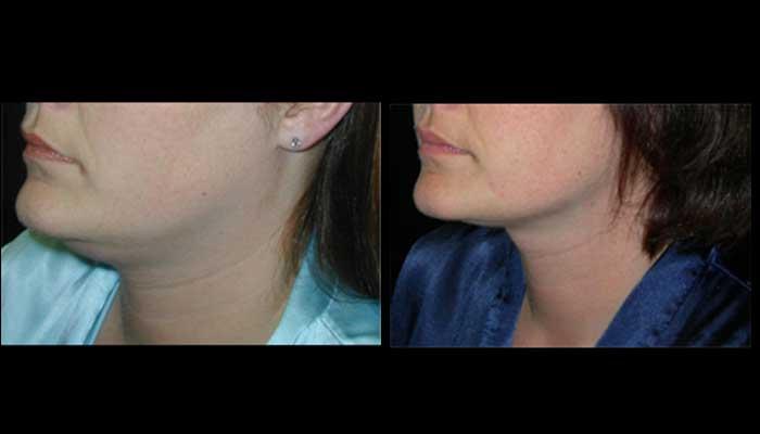 Atlanta Facial Rejuvenation Patient 3 Before & After
