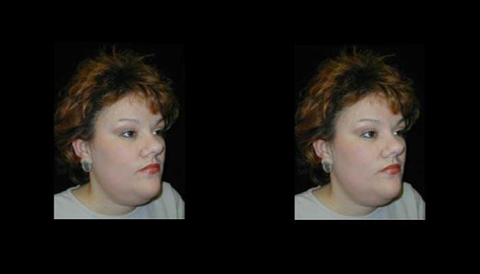Atlanta Facial Rejuvenation Patient 4 Before & After