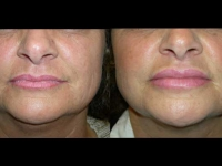 Atlanta Facial Rejuvenation Patient 1 Before & After