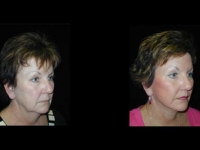 Atlanta Facial Rejuvenation Patient 2 Before & After