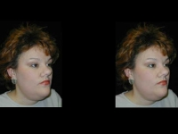 Atlanta Facial Rejuvenation Patient 4 Before & After