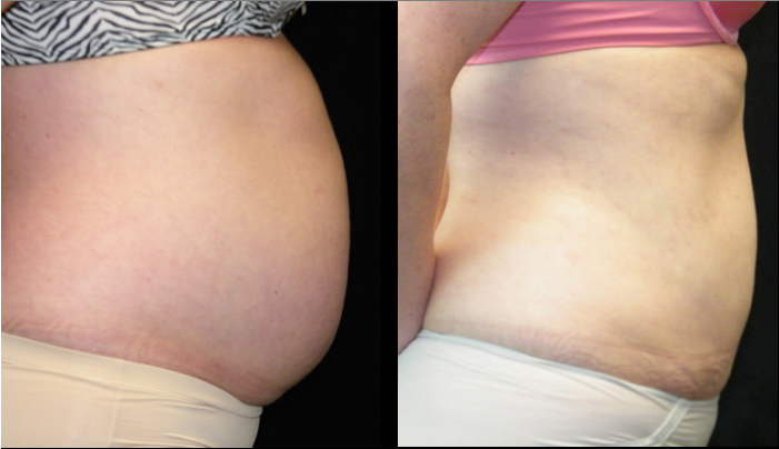 Atlanta Liposuction Patient 20 Before & After