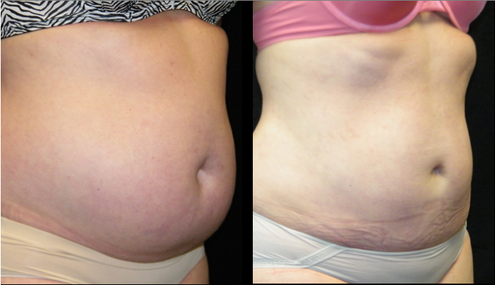Atlanta Liposuction Patient 21 Before & After