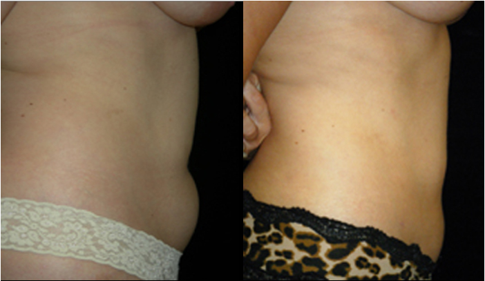 Atlanta Liposuction Patient 22 Before & After