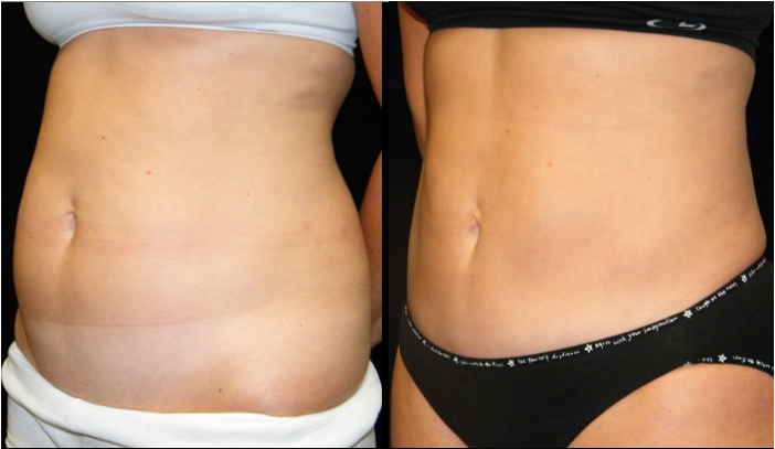 Atlanta Liposuction Patient 23 Before & After