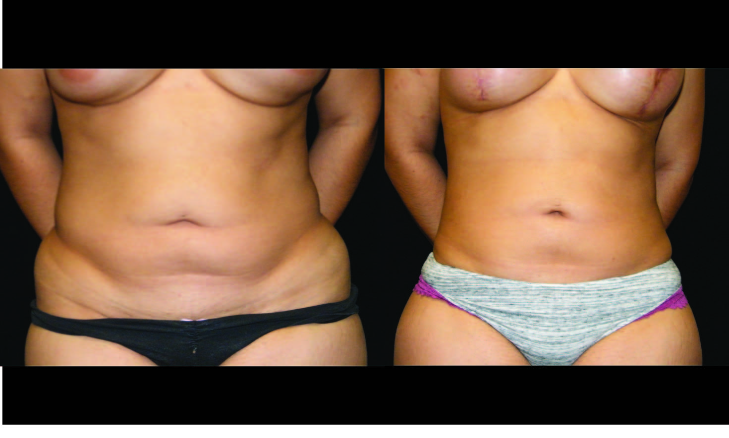 Atlanta Liposuction Patient 32 Before & After
