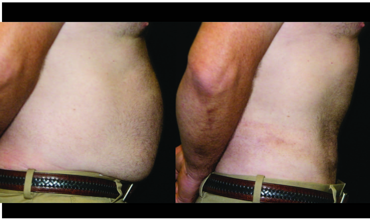 Atlanta Liposuction Patient 1 Before & After