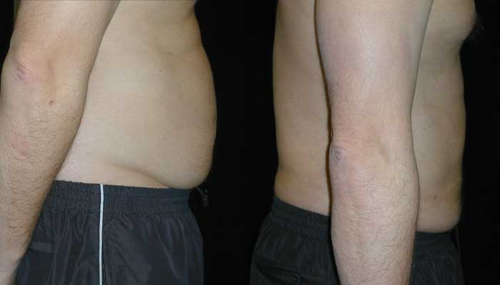 Atlanta Liposuction Patient 26 Before & After
