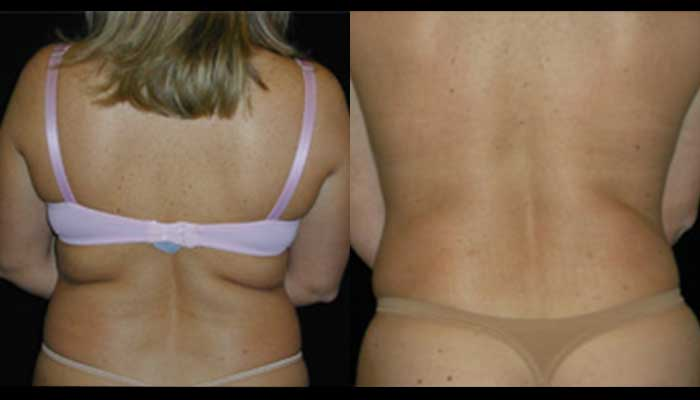 Atlanta Liposuction Patient 03 Before & After