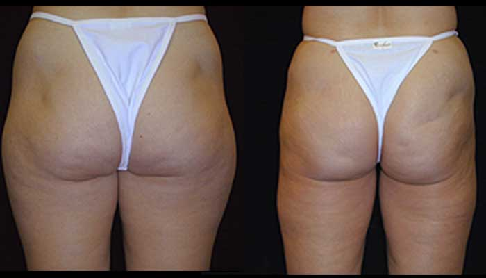 Atlanta Liposuction Patient 5 Before & After