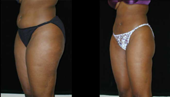 Atlanta Liposuction Patient 6 Before & After