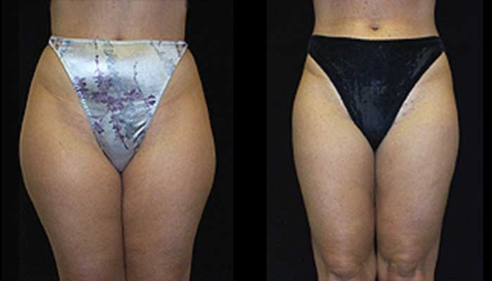Atlanta Liposuction Patient 07 Before & After