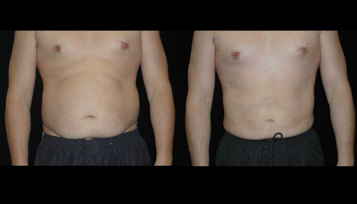 Atlanta Liposuction Patient 9 Before & After