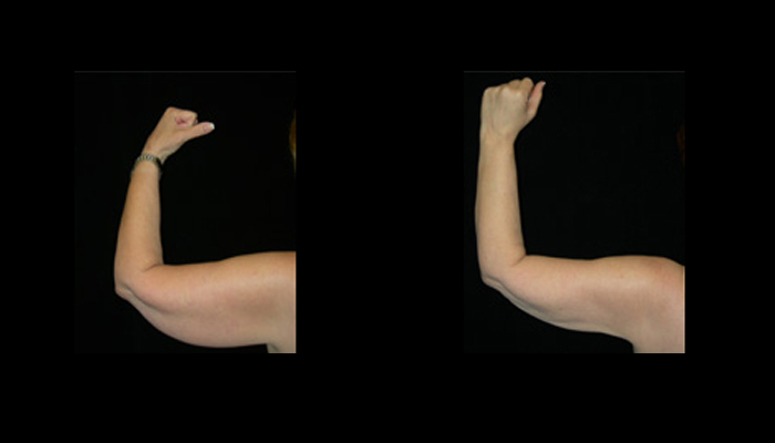 Atlanta Liposuction Patient 27 Before & After