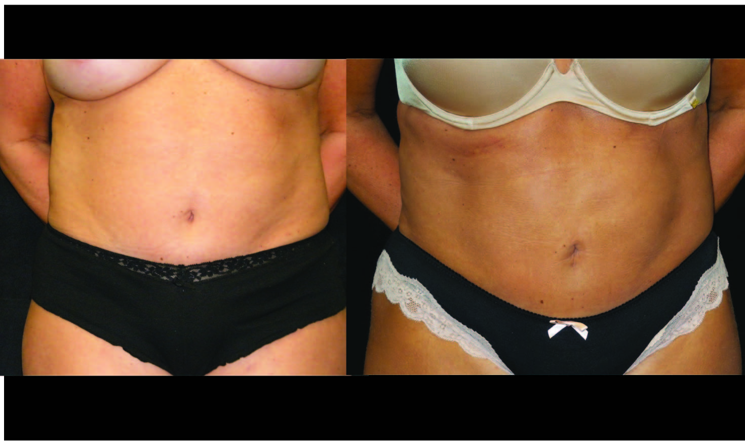 Atlanta Liposuction Patient 37 Before & After