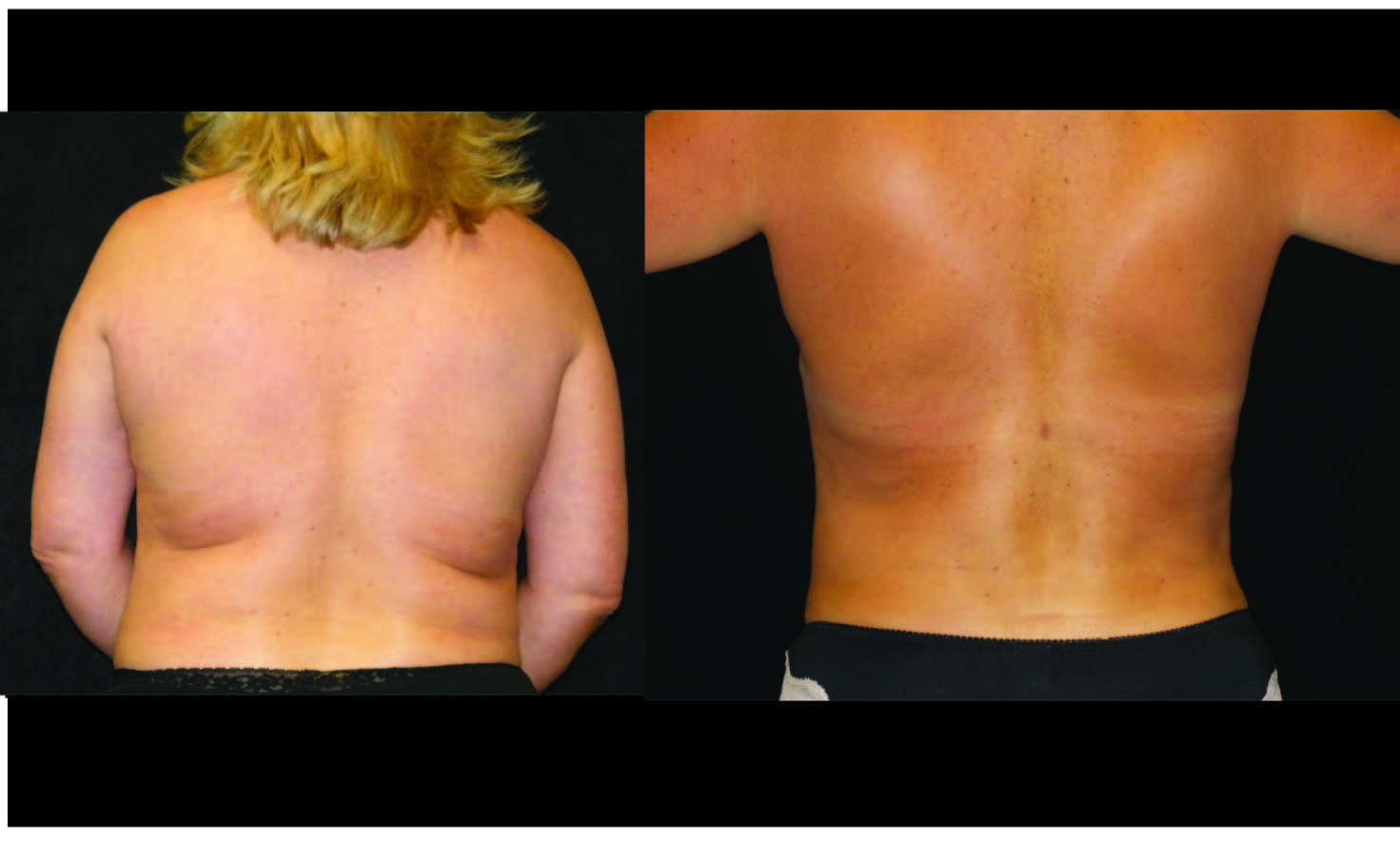 Atlanta Liposuction Patient 39 Before & After