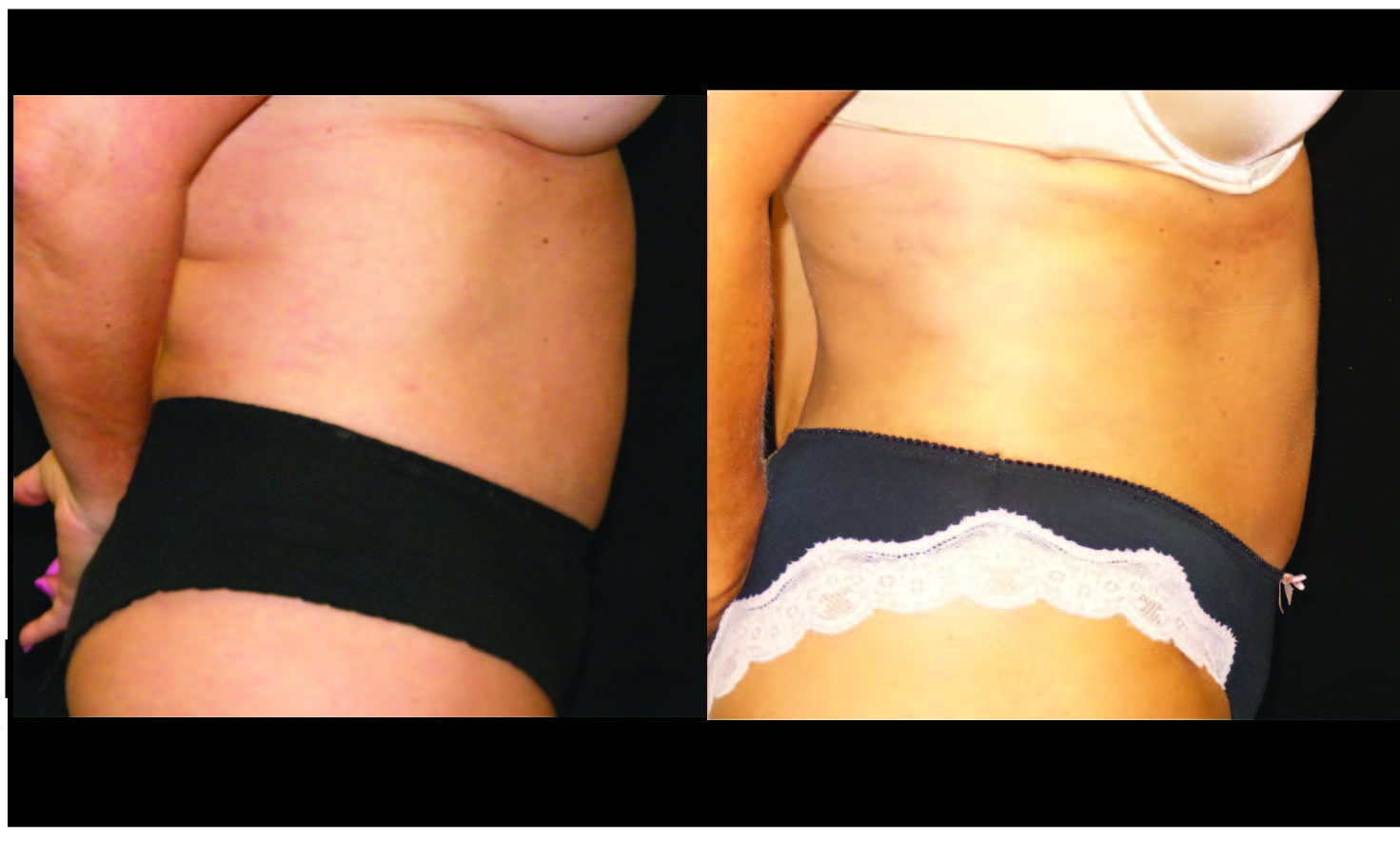 Atlanta Liposuction Patient 40 Before & After