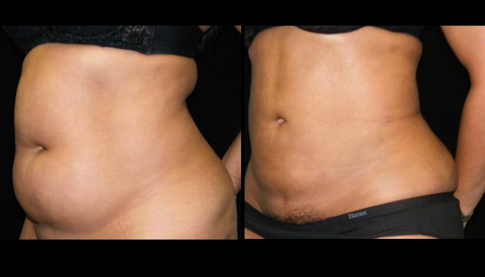 Atlanta Liposuction Patient 30 Before & After