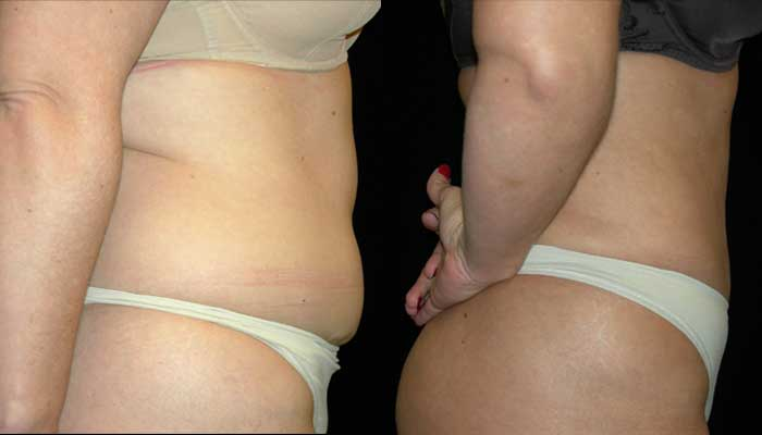 Atlanta Liposuction Patient 12 Before & After