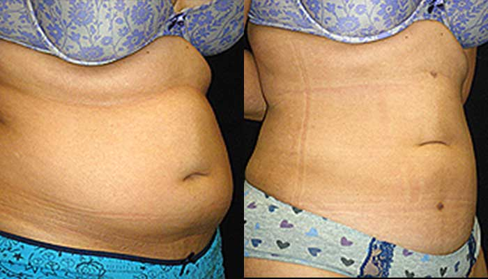 Atlanta Liposuction Patient 14 Before & After
