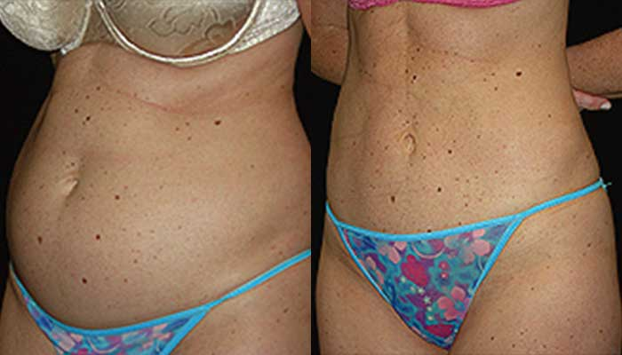 Atlanta Liposuction Patient 15 Before & After