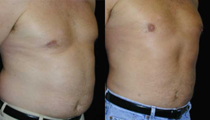 Atlanta Liposuction Patient 17 Before & After