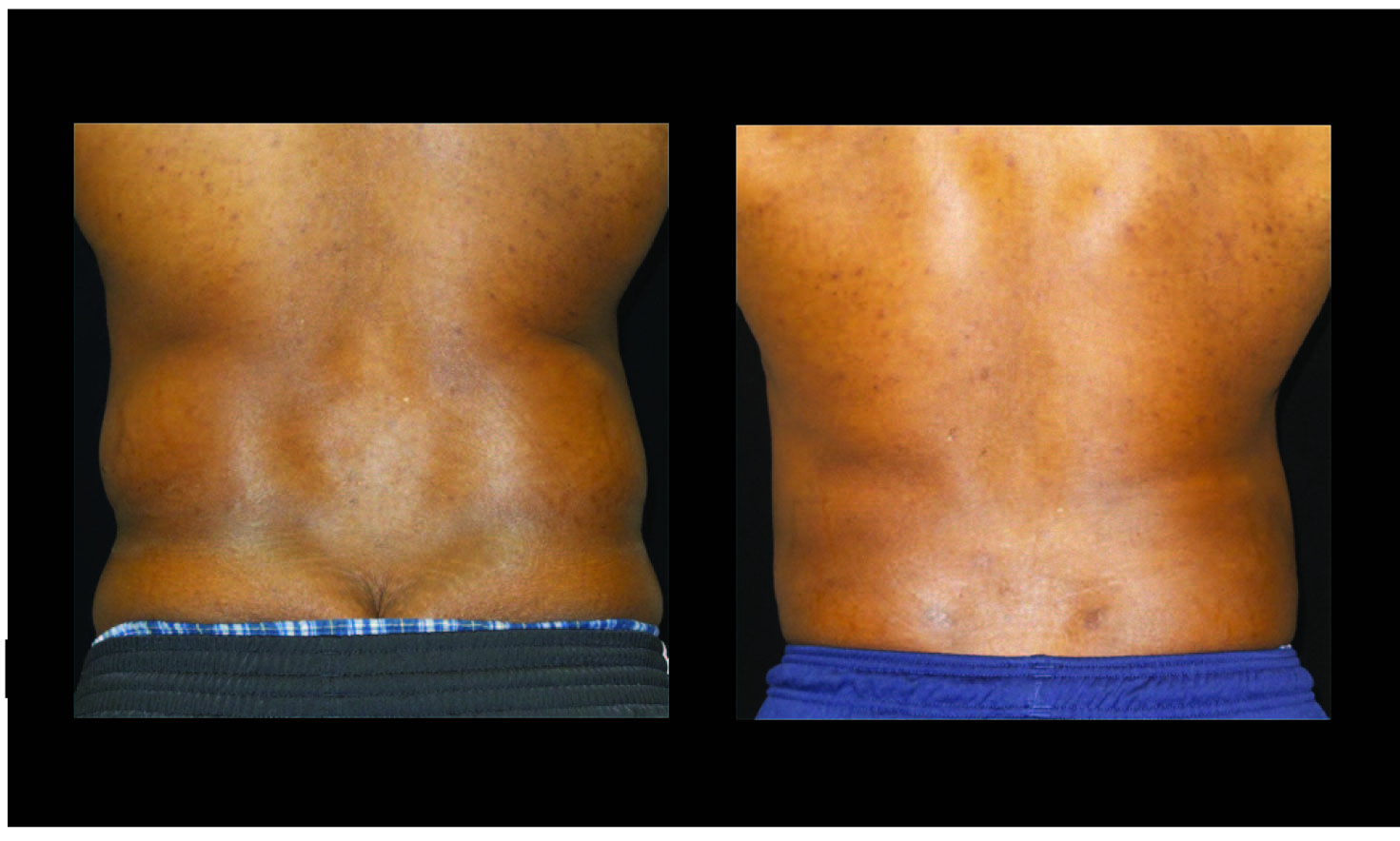 Atlanta Liposuction Patient 44 Before & After
