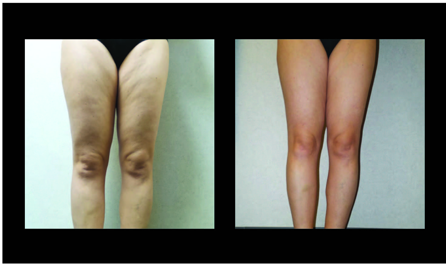 Atlanta Liposuction Patient 42 Before & After