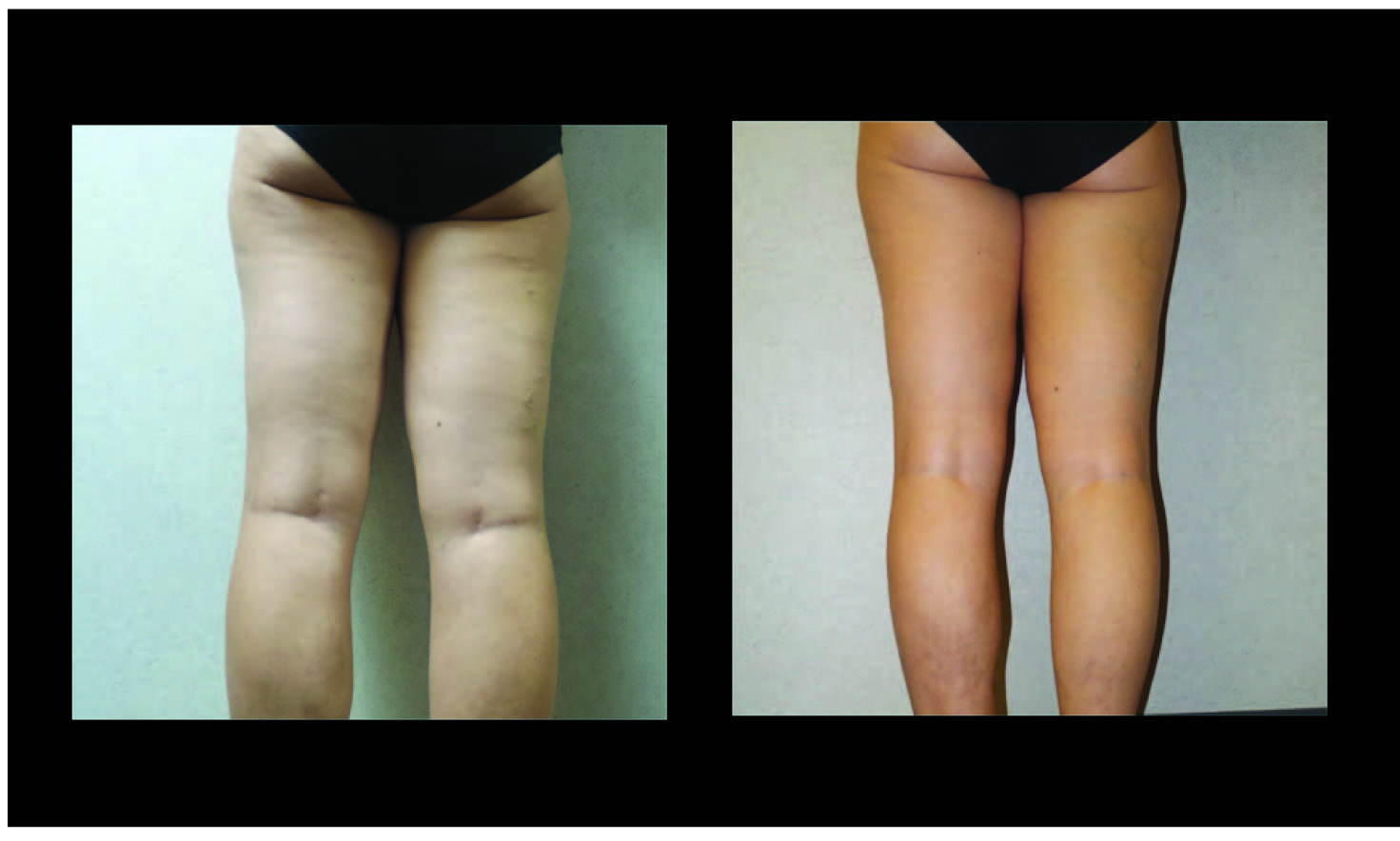 Atlanta Liposuction Patient 41 Before & After