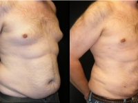 Atlanta Liposuction Patient 18 Before & After