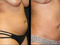 Atlanta Liposuction Patient 19 Before & After