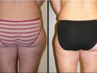 Atlanta Liposuction Patient 24 Before & After
