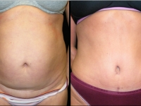 Atlanta Liposuction Patient 25 Before & After