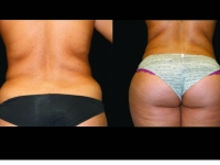 Atlanta Liposuction Patient 33 Before & After