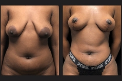 Atlanta Liposuction Patient 02 Before & After