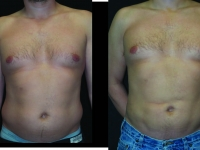 Atlanta Liposuction Patient 35 Before & After