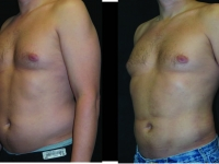 Atlanta Liposuction Patient 36 Before & After