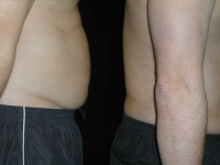 Atlanta Liposuction Patient 34 Before & After