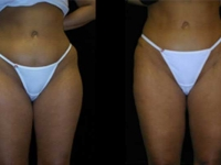 Atlanta Liposuction Patient 04 Before & After